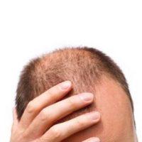Repousse cheveux homme
