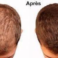 l'huile de ricin cheveux avant après