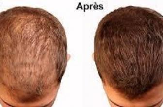 L'utilité de l'huile de ricin pour les cheveux