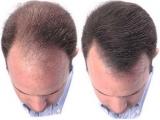 Repousse cheveux: astuces et conseils pour accélérer et soigner